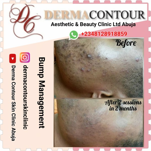 dermatologist in Abuja, plastic surgery, liposuction surgery, dermatology,Keloid specialist, Keloid Treatment professionals in Abuja. Keloid Treatment near me,