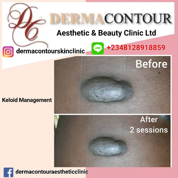 dermatologist in Abuja, plastic surgery, liposuction surgery, dermatology, keloid care in Abuja, skin treatment in Abuja, medical spa in Abuja, hair clinic in Abuja, best keloid treatment in Abuja