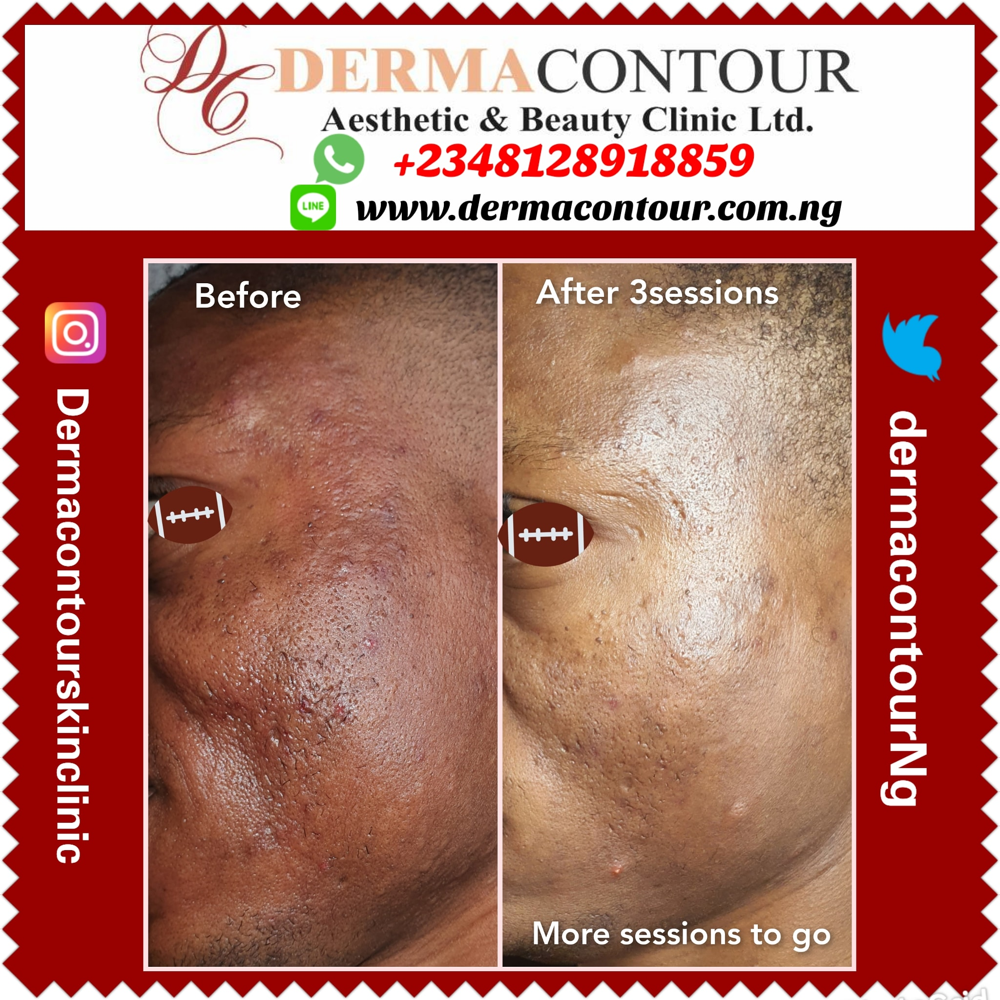 Acne Treatment, Non-surgical fat reduction therapy, Tattoo removal, Acne Treatment Spot Removal Tribal mark removal Dark knees, Dark Knuckles Removal, dark elbow, knees, spots Removal @dermacontourskinclinic #Contour #Aesthetic and #Beauty #Clinic #FCT #Abuja #Nigeria 🇳🇬 #Acnetreament #Acne #Stretchmarkremoval #Scars #Eczema #Pimples #skindamage #Lasertreatment #darkknuckles #skintreatment #Facelift #Tattooremoval #Hairremoval #Cosmetic #tribalmarks #Skindoctor #dermatologist #Skinissues #Bodysculpting #bodycontouring #Fatreduction #teethwhitening #makeup