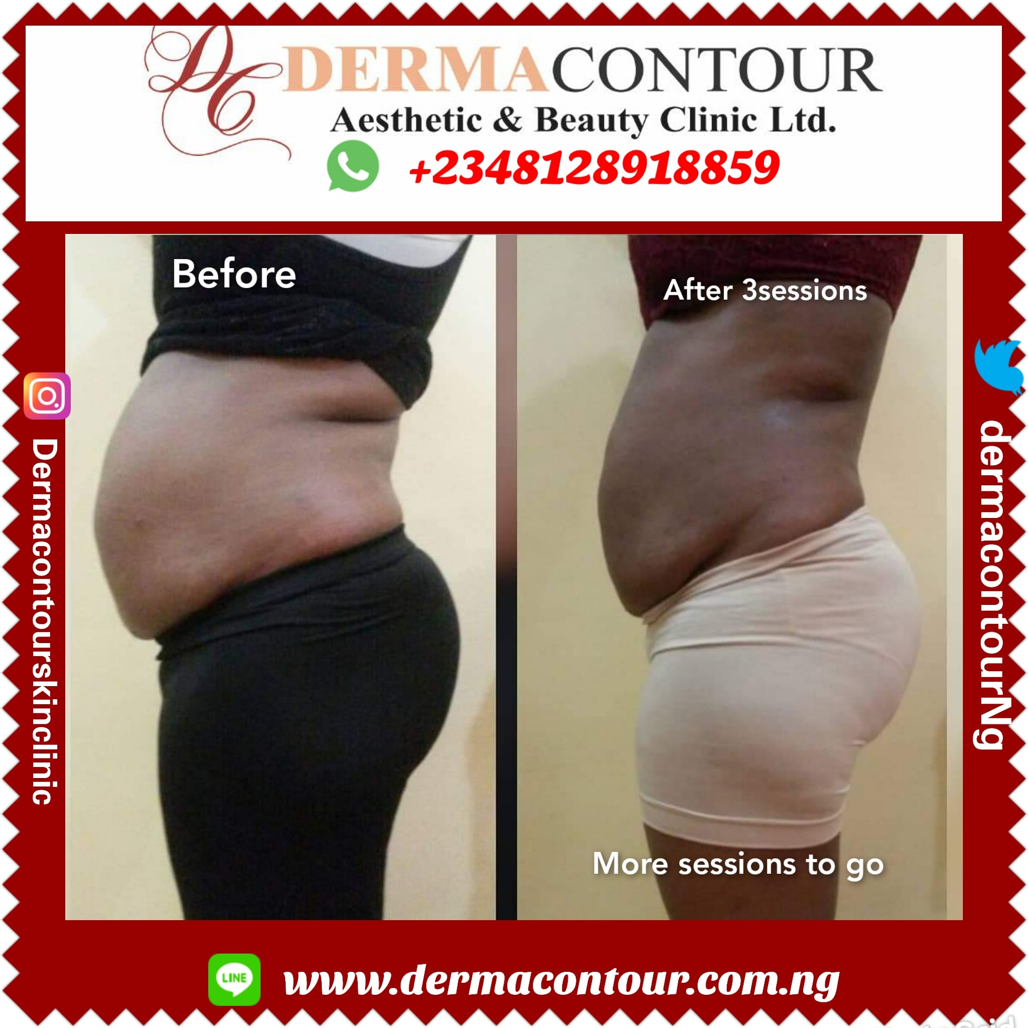 Slimming therapy,Stretch mark removal, fatremoval, bodysculpting, fatreduction,