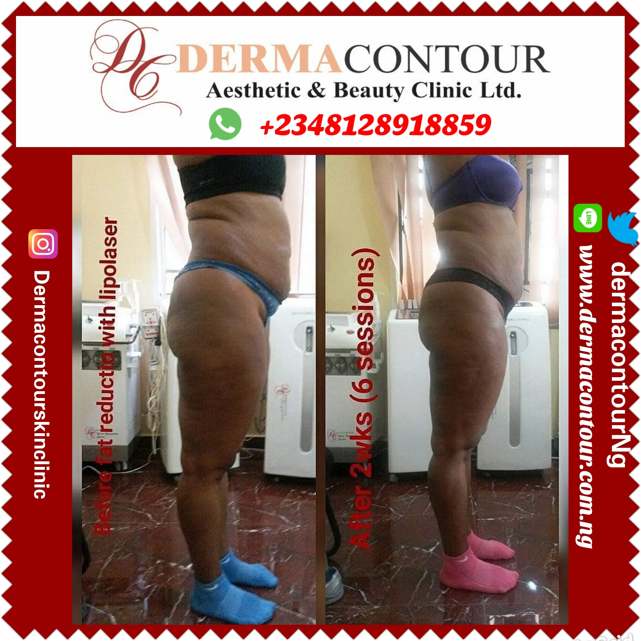 Liposuction, bodycontouring, fatreduction, fatremoval, bodysculpting