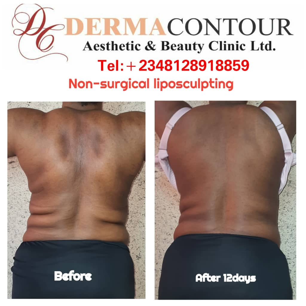 Liposuction Nigeria,  best Liposuction surgeon in Abuja
