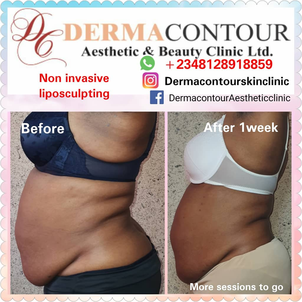 Derma Contour, Liposuction,  bodycontouring,  bodysculpting,  fatreduction,  fatremoval,  bodysculpting,  Non-surgical liposculpting,