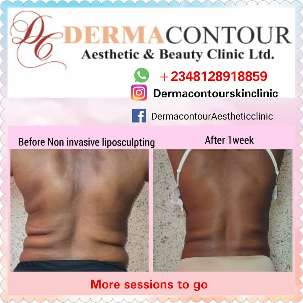 Dermatologist in Abuja, lagos,Liposuction,  bodycontouring,  bodysculpting,  fatreduction,  fatremoval,  bodysculpting,  Non-surgical liposculpting,