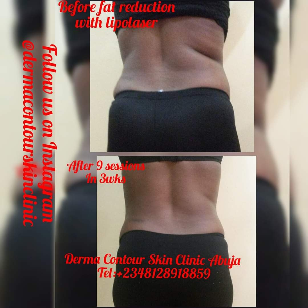Liposuction,  bodycontouring,  bodysculpting,  fatreduction,  fatremoval,  dermatologist in Abuja,  lagos,  Sculpture