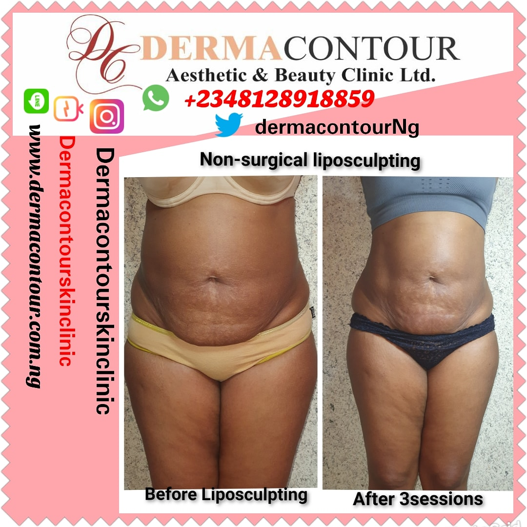 Fat freezing, dermatologist, Liposuction,  bodycontouring,  bodysculpting,  fatreduction,  fatremoval,  bodysculpting,  Non-surgical liposculpting,