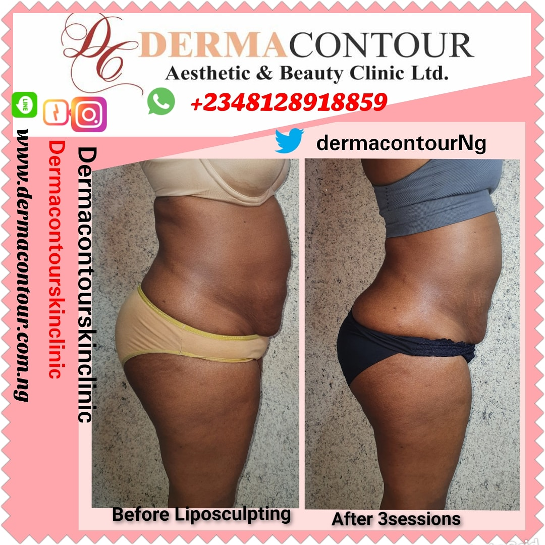Dermatologist in Abuja, Liposuction,  bodycontouring,  bodysculpting,  fatreduction,  fatremoval,  bodysculpting,  Non-surgical liposculpting,