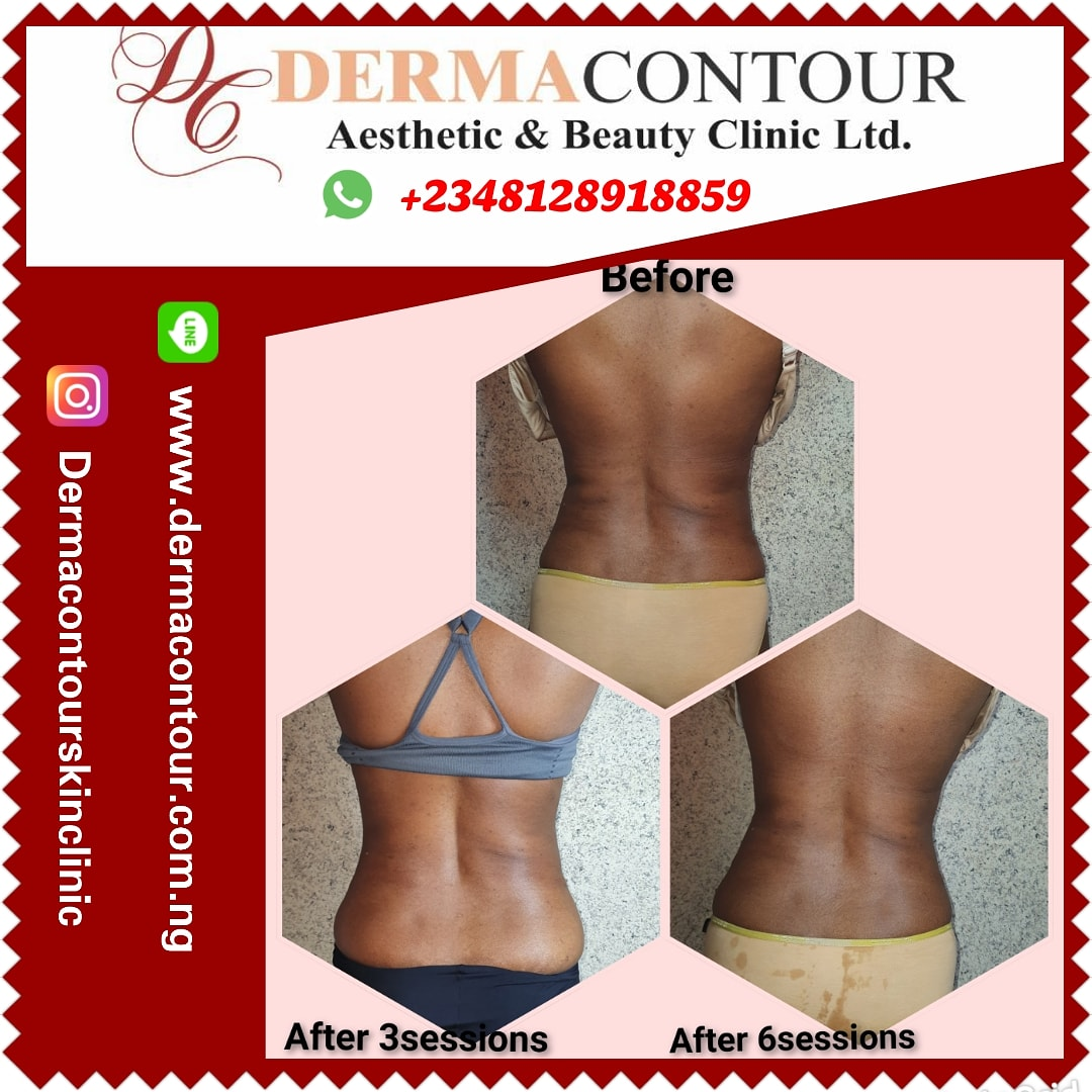 Liposuction,  bodycontouring,  bodysculpting,  fatreduction,  fatremoval,  dermatologist in Abuja,  lagos,  Nigeria