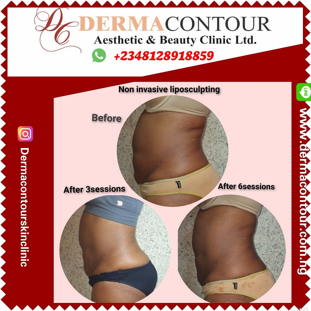 Liposuction,  bodycontouring,  bodysculpting,  fatreduction,  fatremoval,  dermatologist in Abuja,  lagos,