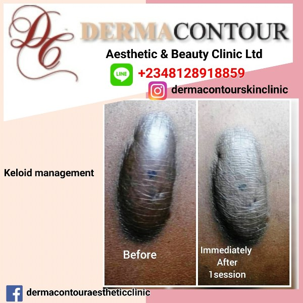 dermatologist in Abuja, plastic surgery, liposuction surgery, dermatology, hypertrophic scars, lumps, warts, keloid treatment in Abuja, lagos, kogi, keloid scar management, keloid care in Abuja