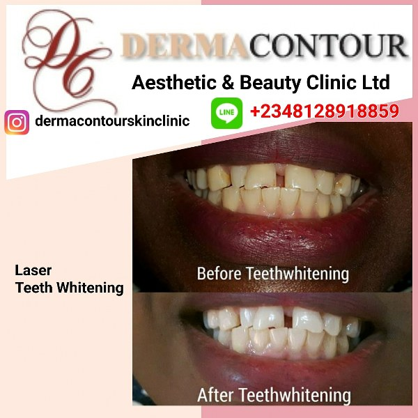 Teeth whitening, beauty clinics, best body hair removal,facial clinic, derma, body sculpting, dentist, dermatologist