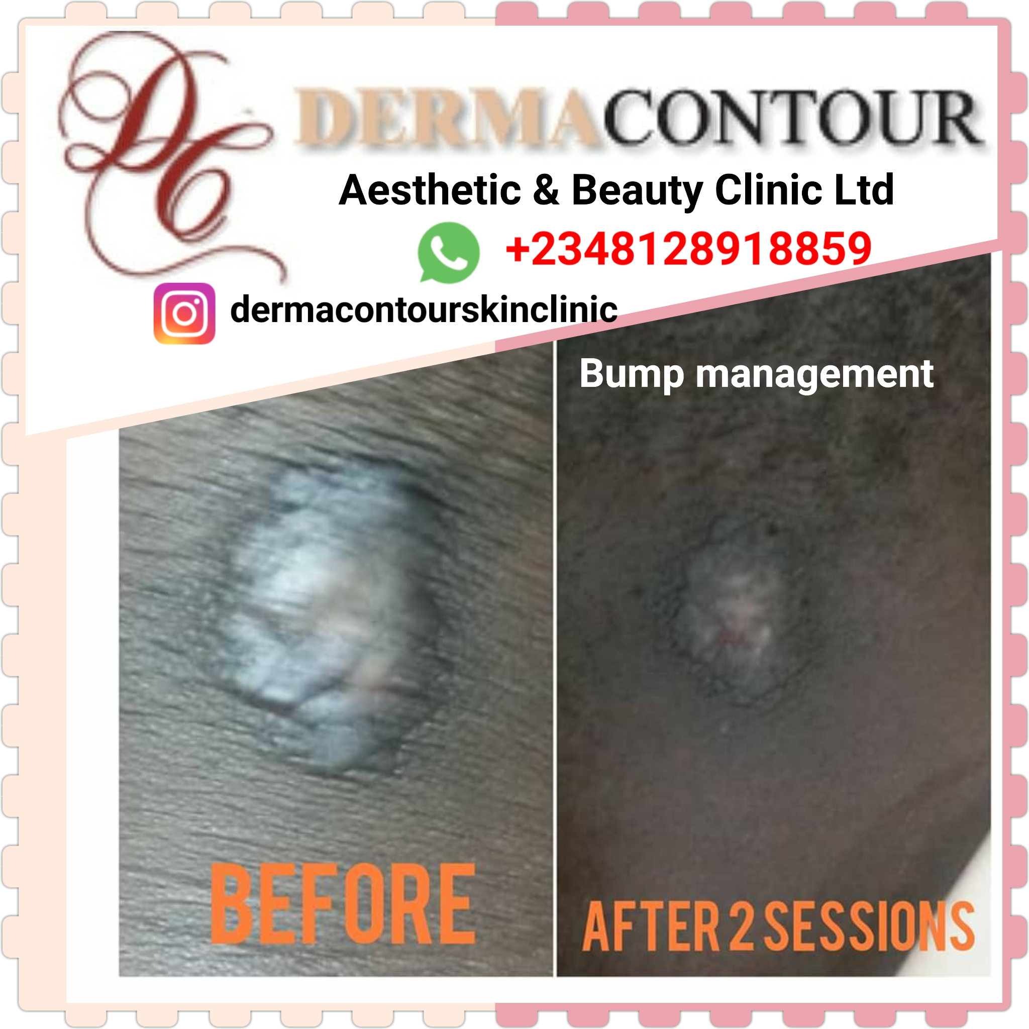 a dermatologist, acne scar removal, acne scar treatment, acne treatment, cosmetic surgery, dermatology near me, acne, scar removal, skin doctor