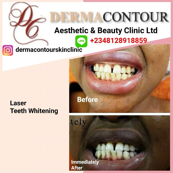 cool sculpturing, cosmetic clinic, cosmetic dermatologist, cosmetic dermatology, teeth whitening, dentist, teeth whitening stripes