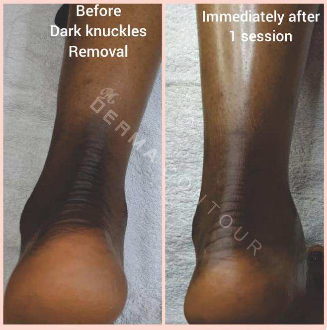 Darknuckles removers