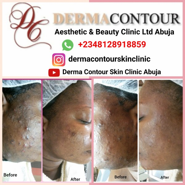 Acne Scar treatment in Abuja.