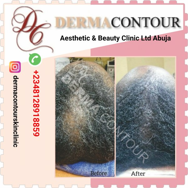 Hair loss treatment in Abuja Nigeria.