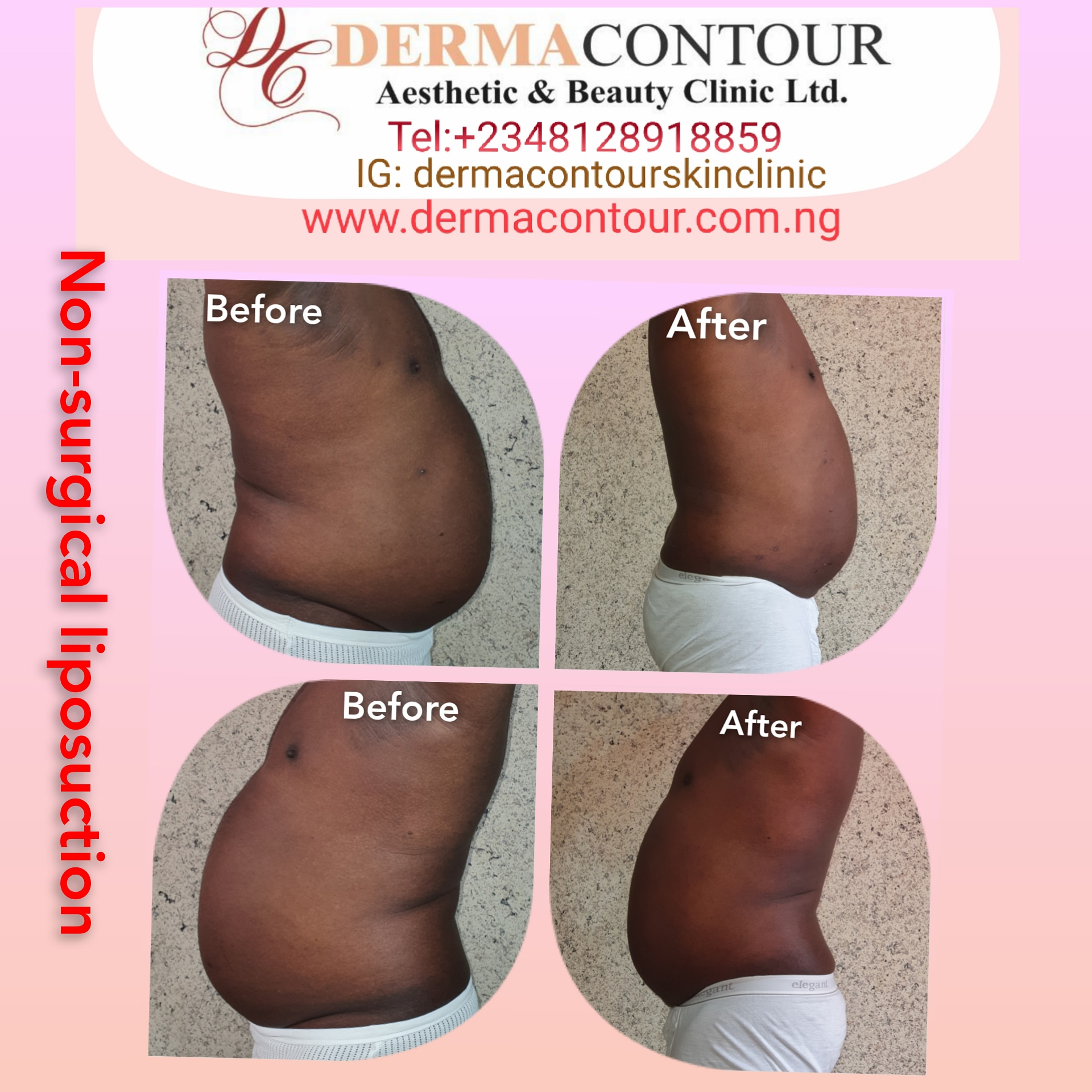 Coolsculpting, fatreduction, fatremoval, bodysculpting, fatreduction, fatremoval, Fat freezing, bodycontouring, fatreduction