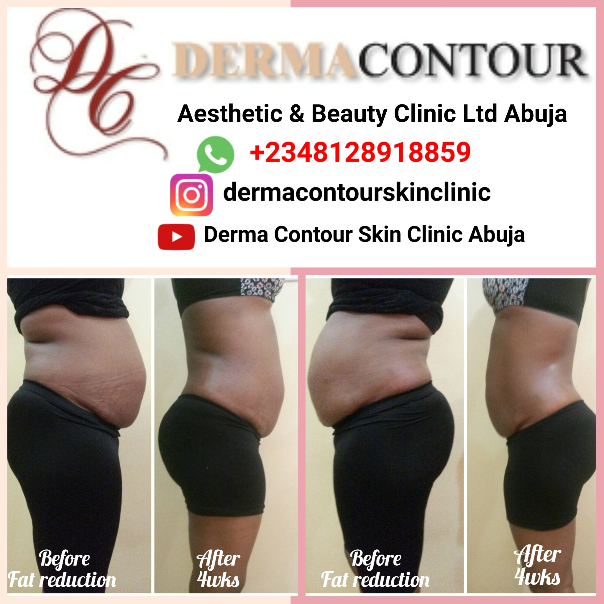 No pai, no downtime fat reduction using laserlipo