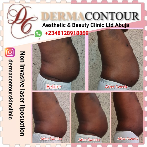 Non invasive liposuction, body contouring in Abuja.