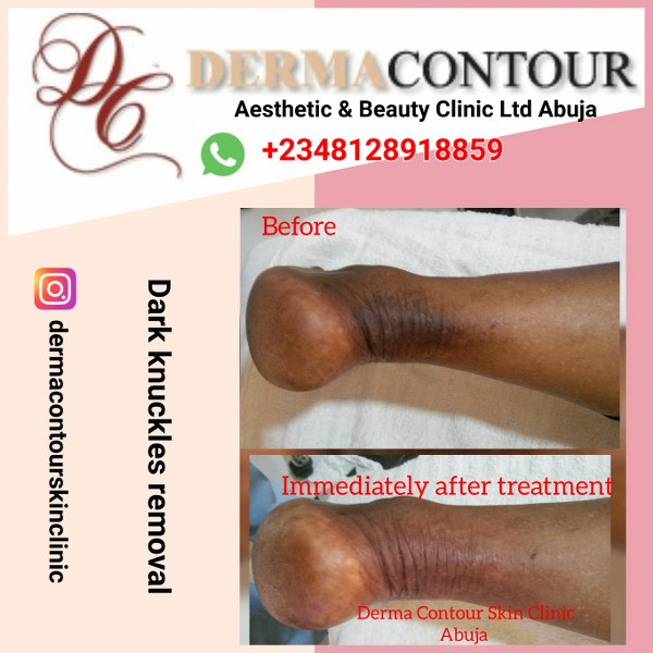 Dark knuckles removal of damage caused by whitening cream in Abuja.