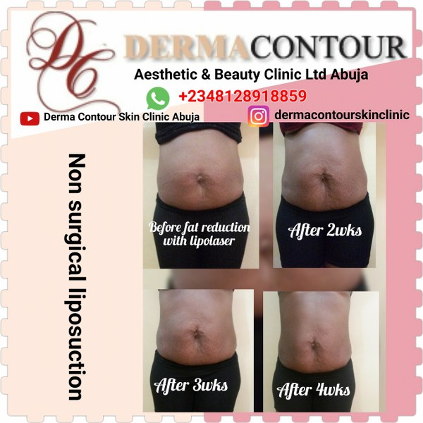 Non surgical Liposuction in Abuja Nigeria.