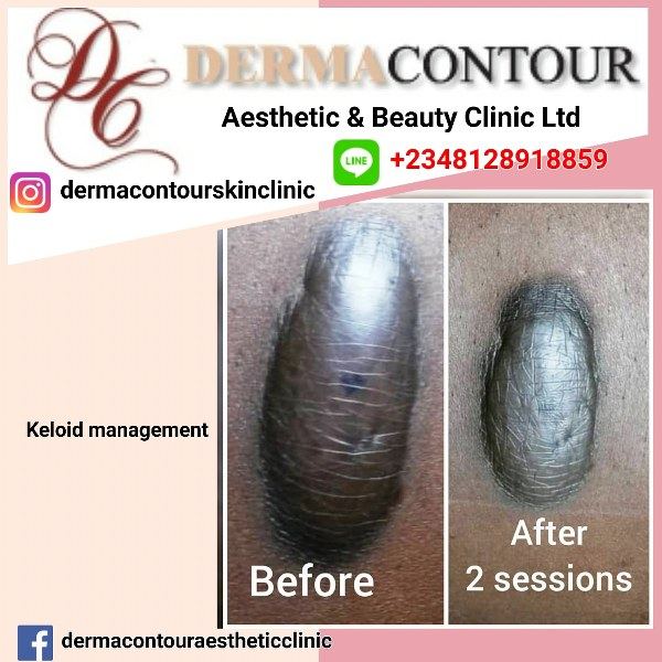 Laser Bumps and Keloid Management in Abuja.